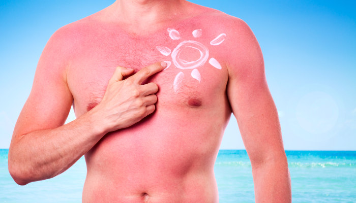 Sunburn in the Nanny State